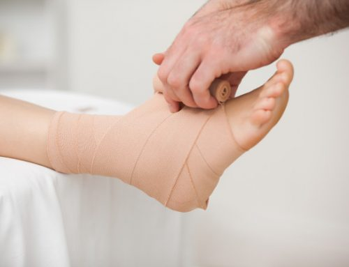 Should I tape or brace my ankle after an ankle sprain?